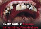 英国警示性烟标